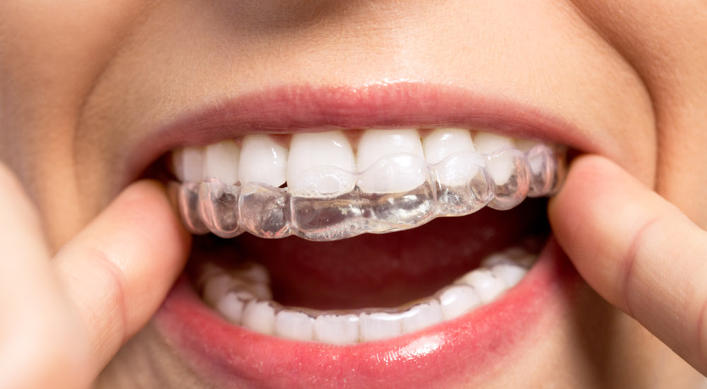 Adult Invisalign Clear Aligners
