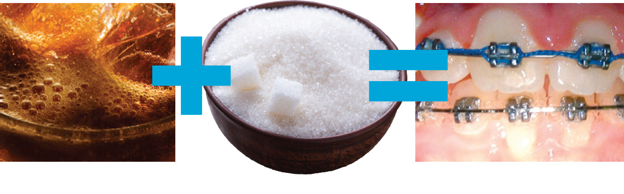 soda sugar braces
